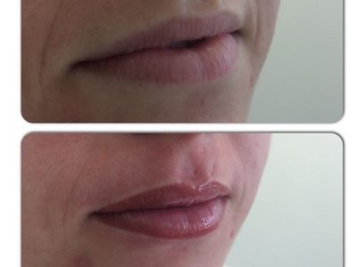 Semi permanent lip makeup 04