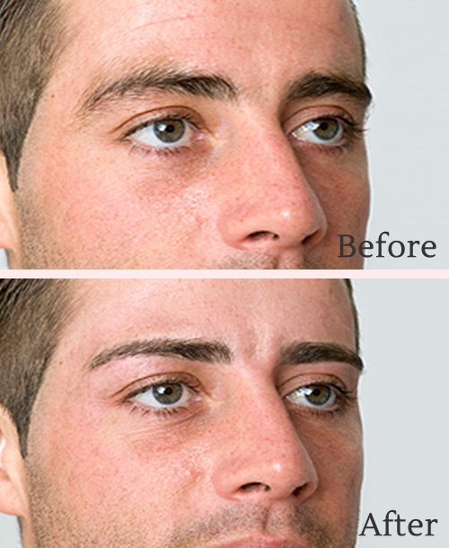 Male HD brows before and after